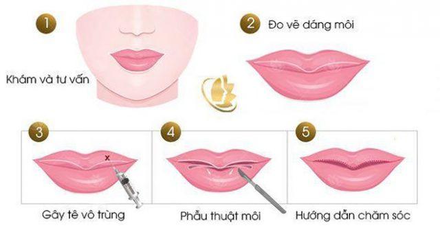 Các phước thực hiện phẫu thuật cắt môi