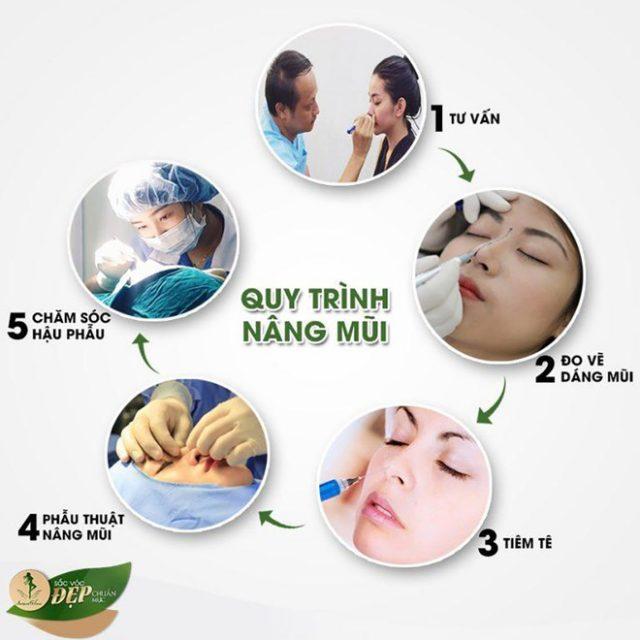 Quy trình nâng mũi an toàn theo quy định của Bộ Y tế